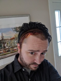 A picture of me a week after hospital discharge. Staples in my wound, hair un-washed, not allowed to shave. Feeling miserable but glad to be alive for it.